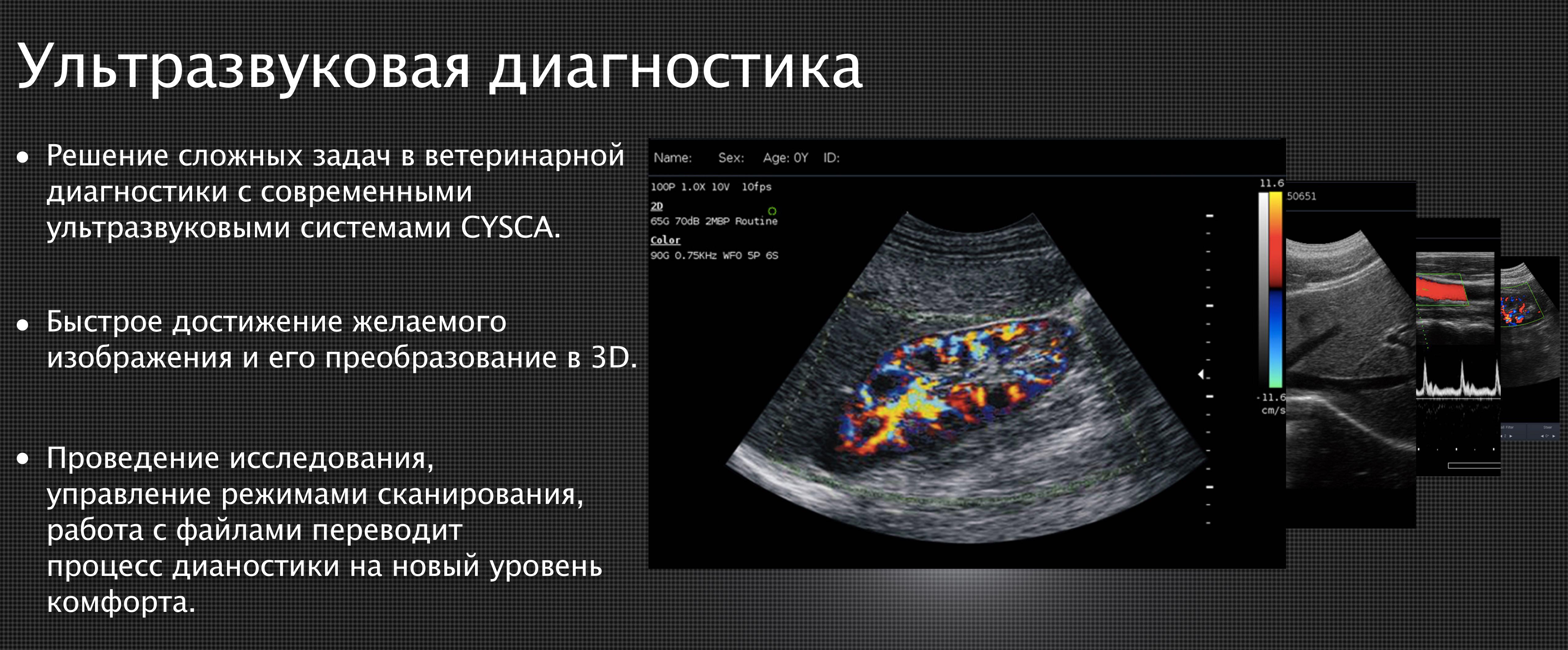 Ультразвуковые сканеры Cysca